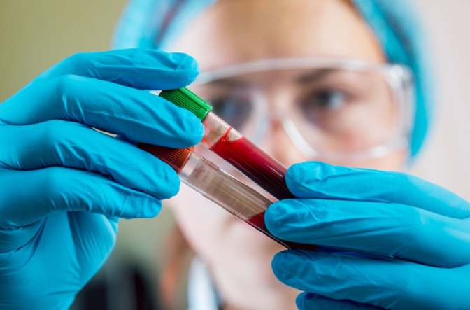 Why It's Vitally Important To Know Your Blood Group