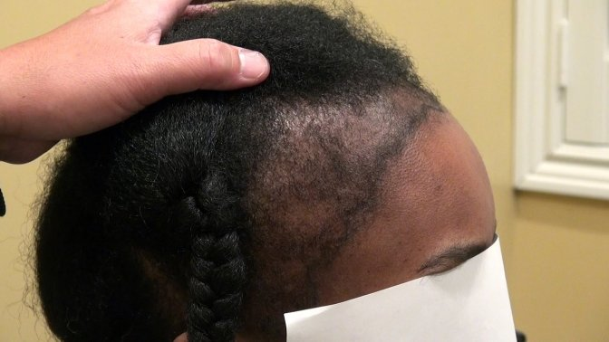 5 Simple Home Tips To Re-grow Hair On Bald Head Naturally